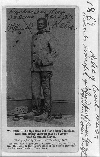 Wilson Chinn A Branded Slave From Louisiana Also Exhibiting Instruments Of Torture Used To Punish Slaves 1863 Ca Carte De Visite